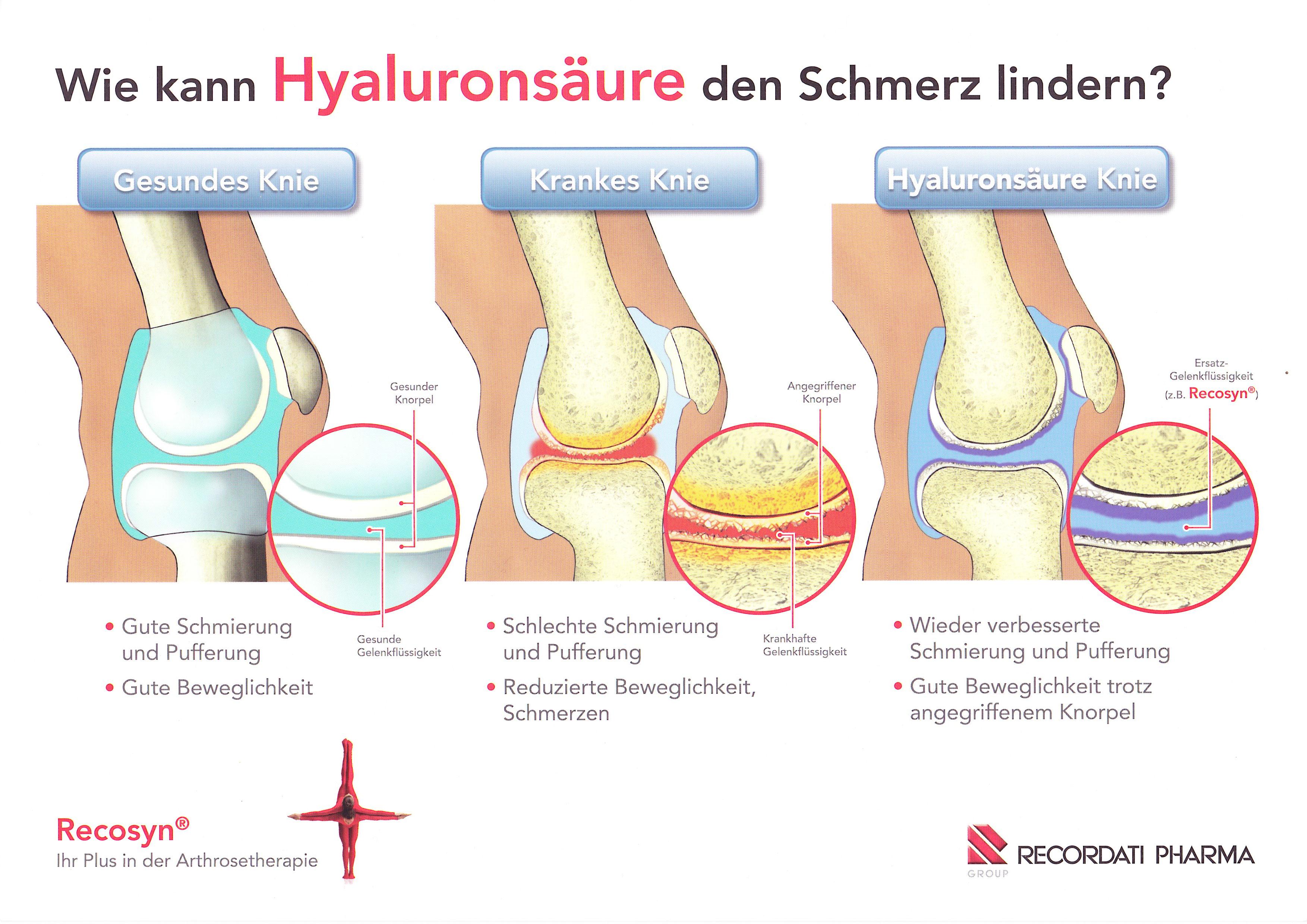 Hyaluronsäure bei Arthrose: Eine sinnvolle Therapie?